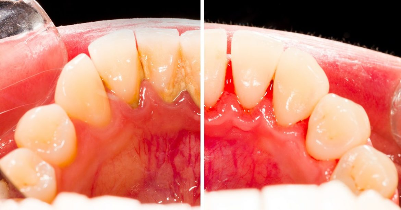 Obține un zâmbet frumos cu ajutorul unui detartraj dentar – airflow făcut la Iași!